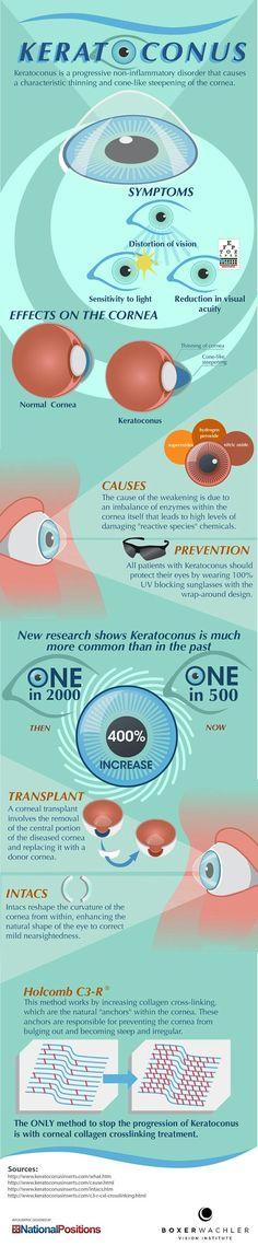 eye-info-keratoconus
