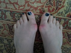 How To Prevent Bunions. Keep my so far undamaged feet from following the misshapen path of heredity!!