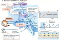 disturbance of balance, and nystagmus
