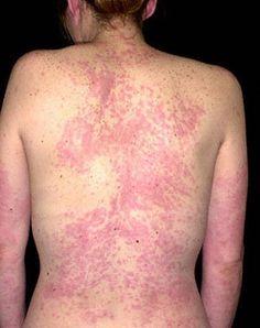 Natural Way To Cure Hives