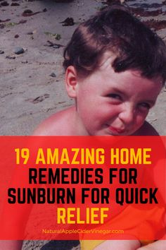 See this home remedies for sunburn recipe. This article contains a natural remedy to help you get rid of sunburn. Use these remedies as a natural way to relieve your sunburn. Check out this great recipe to naturally relieve your sunburn without using harmful ingredients that are bad for you. #sunburn #sunburnremedy #natrualcare #homeremedy Get Rid Of Sunburn, Home Remedies For Sunburn, Natural Home Remedies, Really Bad Sunburn, Sunburn Relief, Inflammation Causes, Natural Treatments