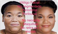 El Vitiligo Facial No Segmentado se retira en un ciclo del metabolismo de la piel de 4 meses