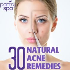 30 Acne Remedies To Clear Up Pimples, Blackheads  Rosacea Naturally Struggling with acne?