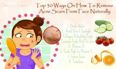 Top 30 Ways On How To Remove Acne Scars From Face Naturally