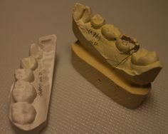https://flic.kr/p/GB8n48 | plaster cast | of my teeth molded in order to fill up a dented part.