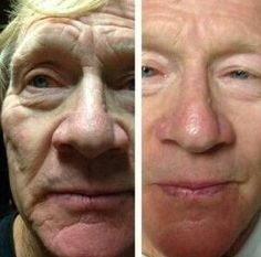 Many Women And Men Are Employing Facial Rejuvenation Exercises For Ultimate Youth