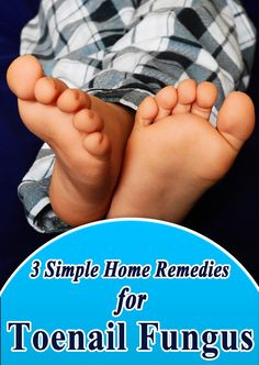 Watch This Video Mind Blowing Home Remedies for Toenail Fungus that Really Work Ideas. Astonishing Home Remedies for Toenail Fungus that Really Work Ideas. Toenail Fungus Remedies, Toenail Fungus Treatment, Nail Treatment, Fungus Toenails, Insomnia Remedies, Sleep Remedies, Holistic Remedies, Beast, Natural Remedies