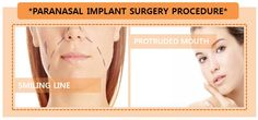 Plastic Surgery/Cosmetic Surgery/Eye Surgery/Nose Surgery/ If you have a concern with protruded mouth, then paranasal implant would be an answer key for you. The implant will be inserted through the inside of the mouth or inside of the nose. #plasticsurgery #cosmeticsurgery #eyesurgery #nosesurgery #rhinoplasty #nosejob #koreanplasticsurgery #doubleeyelidsurgery #eyesurgeryinkorea #breastaugmentation