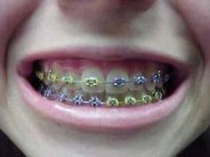 Getting braces Tuesday. Decided to do the half and half,but with peach and teal. Fake Braces, Braces Tips, Kids Braces, Dental Braces, Teeth Braces, Braces Smile, Cute Braces Colors, Getting Braces, Brace Face
