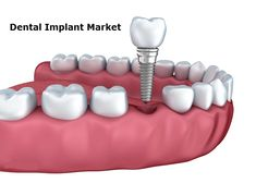 A dental implant (also known as an endosseous implant or fixture) is a surgical component that interfaces with the bone of the jaw or skull to support a dental prosthesis such as a crown, bridge, denture, facial prosthesis or to act as an orthodontic anchor. In the context of China-US trade war and global economic volatility and uncertainty, it will have a big influence on this market.