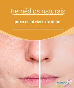 Remédios naturais para cicatrizes de acne  Todos nós sofremos o desconforto da #acne em nossa juventude. Elasestão associadas a alterações #hormonais e afetam a estética de nosso rosto. E é igualmente desagradável chegar à idade adulta apresentando essas marcas #antiestéticas em nossa pele, as quais, na maioria das vezes, marcam-a de forma permanente,marcas essas que causam manchas após um processo inflamatório …  #Beleza