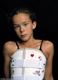 Brave girl documents intense treatment for scoliosis that began aged 9 and required her to wear brace 23 hours a day before having her spine fused with titanium rods Scoliosis Brace, Scoliosis Exercises, Scoliosis Surgery, Broken Arm Cast, Halo Brace, Scoliosis Quotes, Milwaukee Brace, Braces Girls, Body Cast