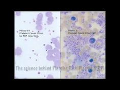 the science behind platelet rich plasma - PRP