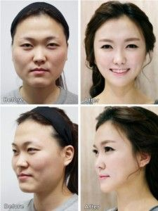 Total Plastic Surgery In South Korea Incredible Photos Of Patients Before And After Ii