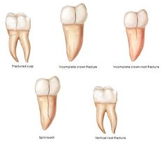 Cracked tooth: Symptoms, diagnosis, and treatment Teeth Implants, Dental Implants, Teeth Images, Cracked Tooth, Tooth Crown, Tooth Extraction Healing, Heal Cavities, Emergency Dentist, Dental Facts