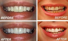 You can have white teeth not only through expensive procedures. Teeth whitening can be done also at home. You will need: - tooth paste; - baking soda; - water; -