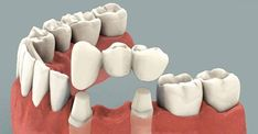 DENTAL BRIDGES – LONG LASTING SOLUTION TO UNSIGHTLY TOOTH GAPS