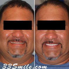 We were able to brighten up our patients smile with restoring 8 teeth on top! He was very happy with how it turned out and so were we. call or DM us if you have questions about the treatment! #drjamsmiles #33Smile . . All photos and video of patients are of our actual patients. All media is the of Cosmetic Dental Associates. Any use of media contained herein is prohibited without written consent. . . #satx #satxdentist #dentistry #goals #smile #teeth #instagoals #transformationtuesday #before Insta Goals, Dental Cosmetics, Smile Teeth, Dental Procedures, Cosmetic Dentistry, Transformation Tuesday, Beautiful Smile, Photo And Video, Happy