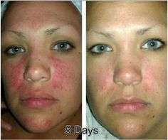 Wow!! Another Nerium AD customer with amazing results only afer 4 days. Imagine her results in 30 days!! Who do you know that needs this product?? 1bottle! No System!!