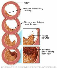 The 10 Best Stable Unstable Prinzmetal Angina Images On
