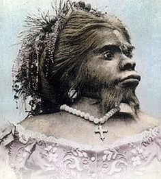 """Julia Pastrana """"The Worlds Most Famous Bearded Lady"""".  She had hypertrichosis, which caused hair all over her body as well as a double row of teeth.  She was 4 1/2 feet tall, but well proportioned.  She was conversant in 3 languages.  She married her disreputable manager and died giving birth; the baby also died.  Her husband had them stuffed and they were exhibited for many years.  Controversially, Julia's Pastrana's body is still unburied at the Department of Anatomy at Oslo Univ."""