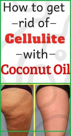 Step by step instructions to Get Rid Of Cellulite With Coconut Oil #BeautyHacksForTeens Coconut Oil Weight Loss, Coconut Oil For Skin, Natural Brushes, Beauty Hacks For Teens, In Cosmetics, Dry Brushing, How To Get Rid, Step By Step Instructions, Cellulite