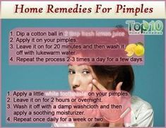 Watch This Video Beauteous Finished Cystic Acne Home Remedies that Really Work Ideas. Divine Cystic Acne Home Remedies that Really Work Ideas. Home Remedies For Pimples, Natural Acne Remedies, Home Remedies For Acne, Natural Cures, Hair Remedies, Pimples Overnight, Skin Care Routine For 20s, Skincare Routine, How To Get Rid Of Pimples