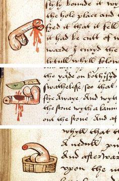 John Arderne, Treatise on Surgery, England ca. 1532 (British Library, Sloane 776, fols. 41v, 71v, 203v)