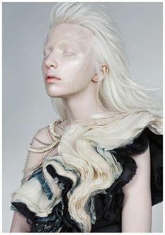 Nastya Zhidkova - a beautiful, rare albino