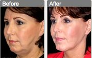 A chin augmentation can lengthen the shape of your face!
