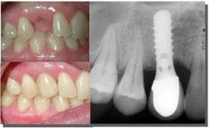 Răng có chức năng ăn nhai, thẩm mỹ. Việc mất răng đem lại những hậu quả nghiêm trọng nếu không trồng răng lại ngay. Vì thế, trồng răng Implant là giải pháp tối ưu nhất cho trường hợp mất răng, không còn khả năng phục hình răng sứ.