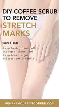 Best coffee scrub for removing stretch marks. Best Coffee Scrub For… Best coffee scrub for removing stretch marks. Best Coffee Scrub For Cellulite Stretch Mark Removal, Stretch Marks, Skin Care Regimen, Skin Care Tips, Skin Tips, Beauty Care, Beauty Skin, Beauty Tips, Beauty Products