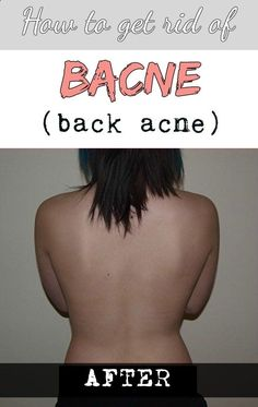 How to get rid of bacne (back acne)