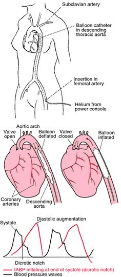 intra-aortic balloon pump - definition of intra-aortic balloon pump by Medical dictionary Nursing Tips, Nursing Notes, Cath Lab Nurse, Medical Dictionary, Free Dictionary, Critical Care Nursing, Cardiac Nursing, Respiratory Therapy, Balloon Pump