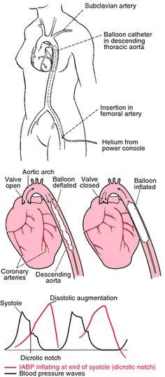intra-aortic balloon pump