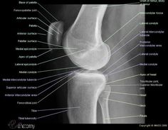 radiological atlas of the lower limb : radiograph of the knee (lateral view) showing joints (femoropatellar joint, femororibial joint, tibiofibular joint) and bones