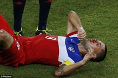 2014 Brazil World Cup Socce Bloody mess: Dempsey will have a few battle scars after taking one full in the face from Boye. jun16/2014