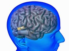 A new DARPA-supported project at Lawrence Livermore National Laboratory aims to build an implantable device that could electrically stimulate neurons in the hope of fighting off memory loss such as that caused by Alzheimer's disease. Brain Memory, Memory Problems, Alzheimer's And Dementia, Traumatic Brain Injury, Neurons, Research Projects, Ptsd, Science And Technology, Memories