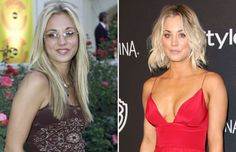 A number of celebrities have gone under the knife over the years. While many are keen not to talk about it publicly, there are some celebs, including Jennifer Aniston and Gwyneth Paltrow, who have been open about cosmetic surgery. The Ordinary For Rosacea, Under The Knife, Celebrity Plastic Surgery, Eye Lift, Loungewear Set, Kaley Cuoco, Hair Transplant, Gwyneth Paltrow, Celebs