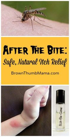 Sometimes the bugs bite ya, in spite of your best efforts. This easy, natural remedy relieves the itch, speeds healing, and is safe for kids.