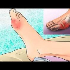 Joint Pain Remedies How to Remove Uric Acid Crystalization in Joints (Gout and Joint pain) Holistic Remedies, Natural Home Remedies, Natural Healing, Uric Acid Causes, Home Remedies For Arthritis, Healing Books, Gout, Medical Prescription, Knee Pain