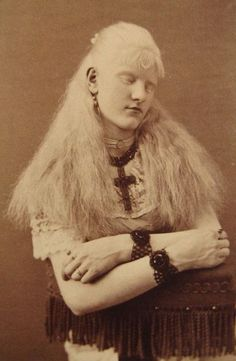 Albino Woman - 1890s sideshow performer
