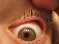 a92a7c9f03c #Blepharitis is an inflammation of the eyelids. It usually affects the  edges (margins) on the eyelids. It is not usually serious, ...