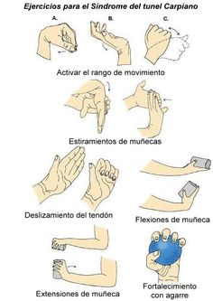 Carpal tunnel Syndrome causes Wrist Pain and burning. Physiotherapy works as best carpal tunnel treatment to reduce hand pain and CTS symptoms. Carpal Tunnel Relief, Carpal Tunnel Syndrome, Carpal Tunnel Surgery, Health Tips, Health And Wellness, Health Fitness, Health Club, Easy Fitness, Wellness Mama