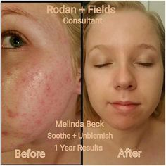 """Hear directly from Melinda:  """"These are my personal results! I was so embarrassed by my before picture that I only took a pic of part of my face.. NOW I show you a FULL FACE pic in my after photo because I am no longer embarrassed by my face! I love it!! I wish I could have found these amazing products earlier! I tried everything to get rid of my horrible acne! Now R+F is the only thing I trust with my sensitive skin!"""" http://iarman.myrandf.com"""