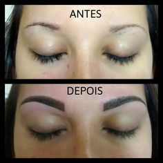 Antes e Depois / Before & After