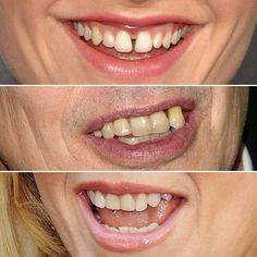 Kirstin Dunst, Anna Paquin, Woody Harrelson, and the other stars on this list may be dentally challenged, but here's how top dentists would fix their smiles. Perfect Smile, Beautiful Smile, Teeth Pictures, Celebrity Smiles, Dental Procedures, Root Canal, Cosmetic Dentistry, Dental Implants, Fast Growing
