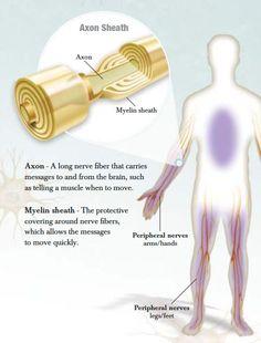Chronic inflammatory demyelinating polyneuropathy (CIDP) Â« - All Diseases Chronic Illness, Chronic Pain, Fibromyalgia, Peripheral Nerve, Peripheral Neuropathy, Chronic Inflammatory Demyelinating Polyneuropathy, Sacroiliac Joint Dysfunction, Nerve Disorders, Rare Disease