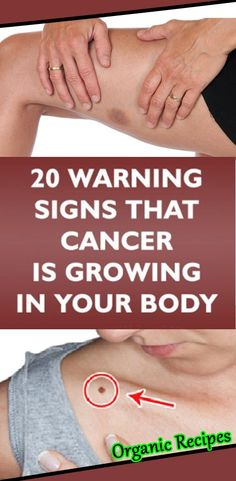 Don't rely on routine tests alone to protect you from cancer. It's just as important to listen to your body and notice anything that's different, odd, or unexplainable. Here are some signs that are… Foods That Cure Cancer, Signs Of Lung Cancer, Cancer Fighting Foods, Cancer Sign, Cancer Cure, Transvaginal Ultrasound, Abdominal Bloating, Feeling Exhausted, Types Of Cancers