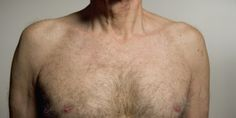 Could You Spot The Symptoms Of Male Breast Cancer  The Symptoms Plus What Happens After Diagnosis